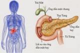 Ung thư tuyến tụy và những triệu chứng dễ bị bỏ qua