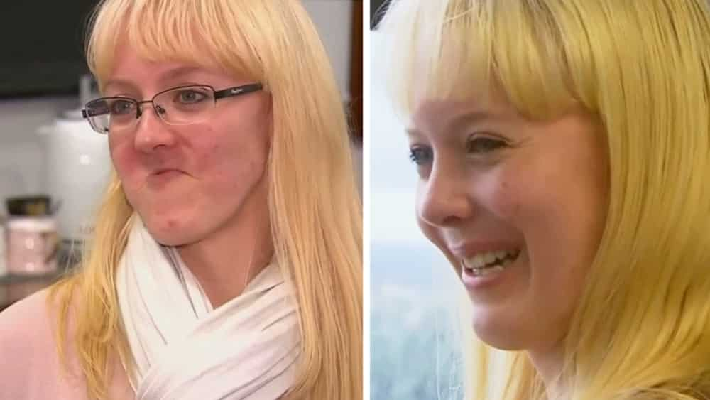 Úc: Lần đầu tiên cấy ghép hàm trên giả bằng công nghệ in 3D