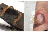 TQ: Điện thoại Huawei Nova 3 phát nổ, truyền thông xóa nhiều tin liên quan