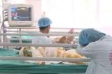 Tình trạng 3 trẻ bị bỏng do đốt cồn: Diện tích bỏng tới 60%, tiên lượng xấu