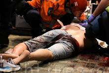 Hồng Kông: Một người bị cắn đứt tai khi cố can hung thủ chém người