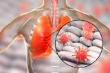 Nhật Bản xác nhận trường hợp đầu tiên nhiễm virus corona mới từ TQ