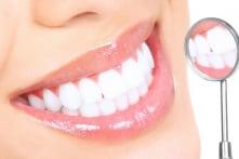 """3 mẹo giúp cải thiện tình trạng """"răng ố vàng"""""""